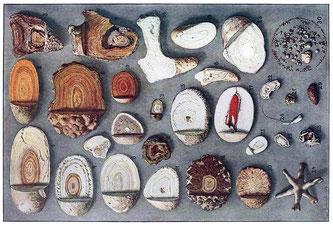 Sammlung von Nieren- und Harnblasensteinen  Wikipedia • Max Brödel • Public domain