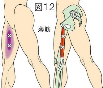 薄筋トリガーポイントによる大腿内側の痛み