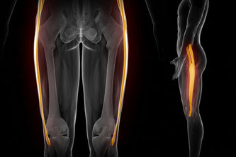 syndrome de l'essuie-glace, podologue paris, podologue du sport paris, douleur externe genou