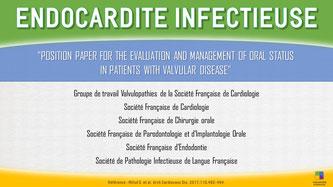 ParoSphère Formation   Endocardite infectieuse et implants dentaires   Sociétés scientifiques