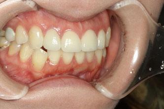 歯並びの審美歯科治療