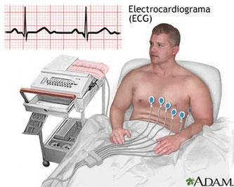 Prueba médica para descartar complicaciones cardiacas