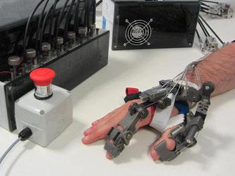 """DaS """"Hand-Exoskelett"""" - volkstümlich gesagt: Roboterhand - hat schon einen Praxistest in einem Restaurant mit Bravour bestanden. Foto: Nicola Vitiello"""