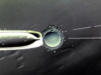 Befruchtung einer weiblichen Eizelle im Labor. Foto: Waltraud Grubitzsch/Archiv