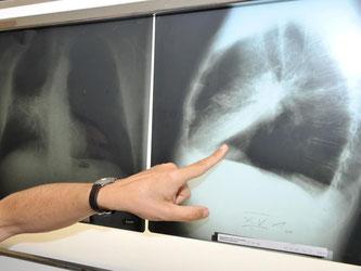 Röntgenbild einer mit Krebs befallenen Lunge im Klinikum der Universität München. Foto: Felix Hörhager/Archiv
