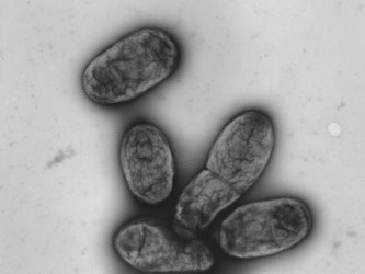 Diese elektronenmikroskopische Aufnahme zeigt das Pestbakterium Yersinia pestis. Foto: Robert-Koch-Institut/dpa