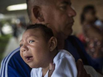 Ein an Mikrozephalie erkrankter Säugling im brasilianischen Recife. Foto: Rafael Fabres/Archiv