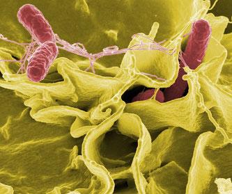 Salmonellen unter dem Mikroskop