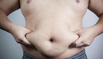 Diabetes Typ 2 ist die Krankheit der stark Übergewichtigen  -  © Shutterstock