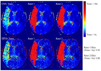 Hirn-Perfusionskarte; Oben mit Convolutional Neural Network (CNN) und unten mit der klassischen Methode eines Patienten mit akutem Hirnschlag. Insel Gruppe