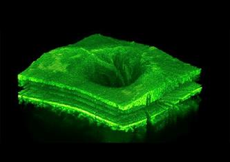 3D-Darstellung des mit einem OCT gewonnenen CScans der Netzhaut eines Patienten. Die OCT-Bildgebung wird von Augenärztinnen häufig zur Überwachung chronischer Augenerkrankungen wie altersbedingter Makuladegeneration (AMD), retinalem Venenverschluss (RVO)
