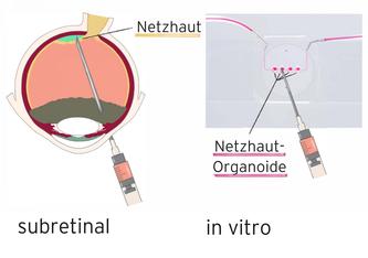 Schematische Darstellung der subretinalen Injektion unter die Netzhaut und in den in vitro Organ-Chip © µOrgano-Lab © µOrgano-Lab  Gentherapien für Netzhauterkrankungen können künftig mit Retina-on-Chip-Systemen getestet werden