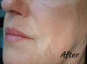 Wrinkle reduction after profhilo treatment