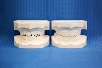 linkes Modell: Zustand vor kieferorthopädischer Behandlung /      rechtes Modell: Ergebnis nach erfolgreicher kieferorthopädischer Behandlung