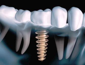 Implantatschraube zum Ersatz eines einzelnen Zahnes