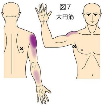 大円筋トリガーポイントによる肩、上腕、前腕の痛み