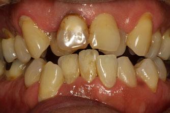 歯並びを審美歯科で治療
