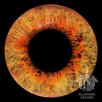 Irisdiagnose Allemann Gesund Buchs