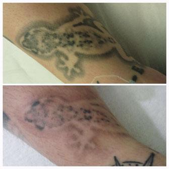 Tattoo-Entfernung von FABRIKSCHÖN (nach 1 Behandlung)