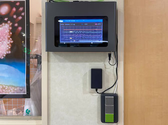 陰圧感染隔離室入り口の監視モニター