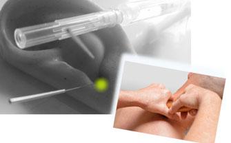 Dorntherapie, Neuraltherapie und Akupunktur als Schwerpunkt der Schmerztherapie.