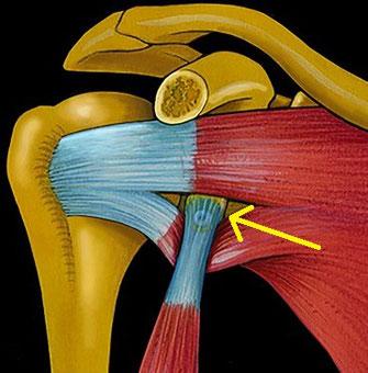Knochenblockoperation nach Latarjet  von vorne gesehen: Der Knochenblock wurde mittels kleiner Öffnung am vorderen Muskel (Subscapularismuskel) an den Pfannenrand angebracht (gelber Pfeil).