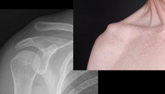 Links: Röntgenbild einer AC Luxation Tossy 3 mit Hochstand der Clavicula.  Rechts: Das Schlüssselbein ist nach oben verschoben, man kann das Klaviertasten-phänomen auslösen, indem das Schlüsselbein nach unten gedrückt wird.