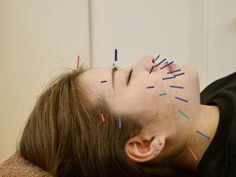 電気を流さない美容鍼灸