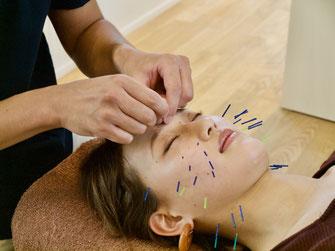 美容鍼灸施術の様子