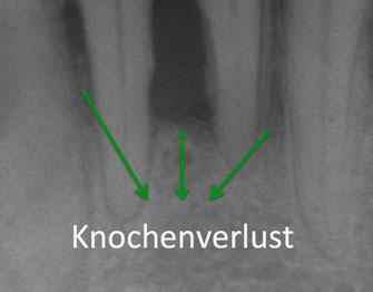 Zahnfleisch und Knochen gehen zurück