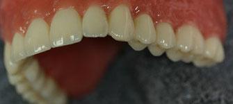 Festsitzender Zahnersatz, Seitenzähne