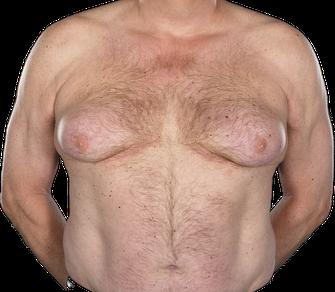 Gynäkomastie (Weibliche Brust des Mannes)