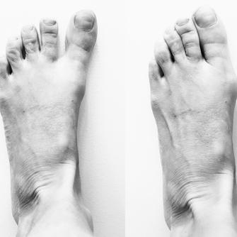 Blote voeten, hallux valgus, ruimte tussen je tenen, voetklachten