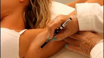 Metodo Epilvip epilazione laser, coprire nei e tatuaggi