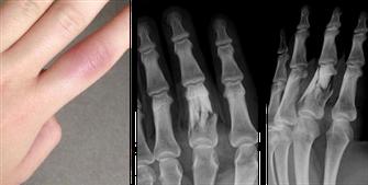 Bild: Klinische und radiologische Zeichen einer Fingerfraktur