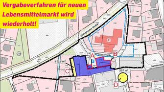 Die Gemeinde erhält vom Anlieger die Flächen A und B. Der Anlieger bekommt die Fläche C und ein Nutzungsrecht für die Fäche D.