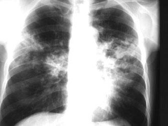 Fig 1. Condensaciones múltiples, con un área sugerente de excavación, como manifestación de tuberculosis