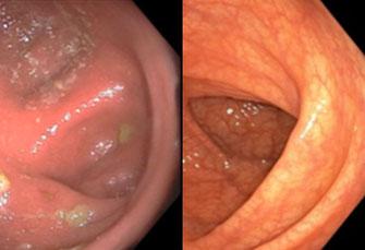 Vor Beginn der Therapie ist der Darm entzündet und geschwollen. Durchfälle sind die Folge. Nach der Fototherapie hat sich der Zustand des Darms wieder vollständig normalisiert.  (Foto: The New England Journal of Medicine ©2020)