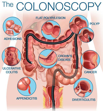 Colonoscopy is performed due to Ulcerative Colitis, Crohn's Disease, Appendicitis, diverticulitis, cancer, polyps and adhesion's. CPM Advanced Suurgical Specialists have performed thousands of colonoscopy procedures in Newnan, Georgia.