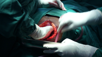 Kaiserschnitt im Spital Ifisi