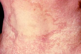 Berloque-Dermatitis bei Anwendung fotosensibilisierender Duftstoffe in Parfums/Rasierwasser und anschließender Sonnenexposition (Fotos: Bayerl)