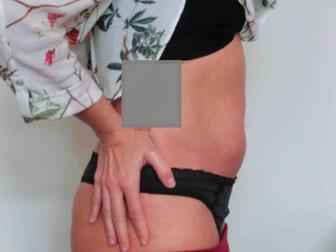 8 Wochen nach einer Behandlung deutlich flacherer Bauch