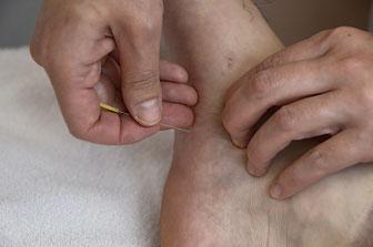 足の裏に鍼灸施術をしている写真
