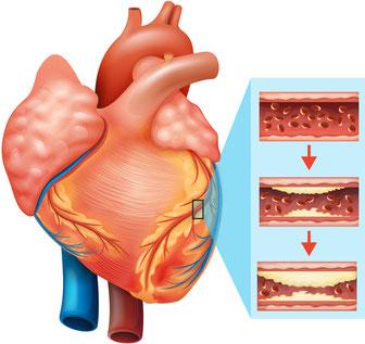 szívkoszorúér megbetegedések