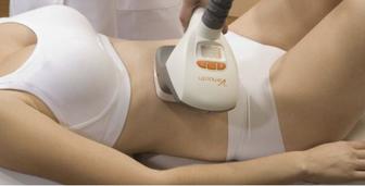 Velashape Behandlung am Bauch