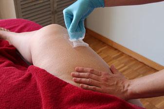 Epiladerm Haarentfernung Abos (Sugaring) bei maximum care cosmetics Zürich, Zürich Nord
