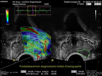 Ultraschall - Elastographie