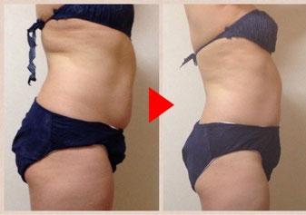 お腹痩せの効果 目黒区痩身エステ 美容鍼灸 リンパマッサージ お腹痩せ 足痩せ