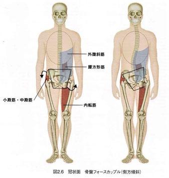 骨盤フォースカップル(側方傾斜)