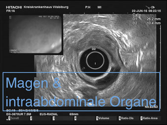 Endosonographie Normalbefund Magen